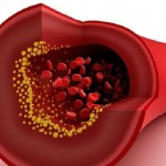 Nanoparticles to treat arteriosclerosis